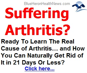 arthritis therapy image